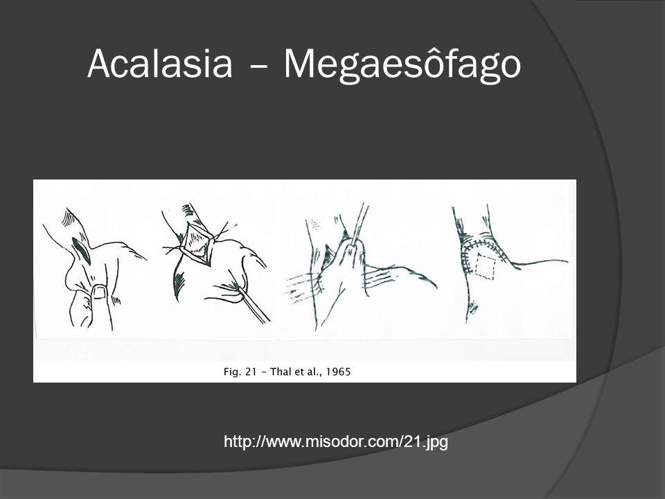 Acalasia – Megaesôfago http://www.misodor.com/21.jpg