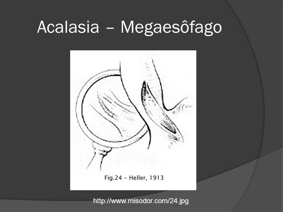 Acalasia – Megaesôfago http://www.misodor.com/24.jpg