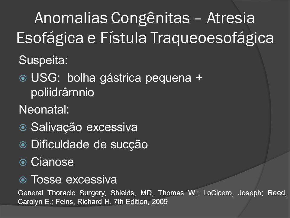 Anomalias Congênitas – Atresia Esofágica e Fístula Traqueoesofágica Suspeita: USG: bolha gástrica pequena + poliidrâmnio Neonatal: Salivação excessiva