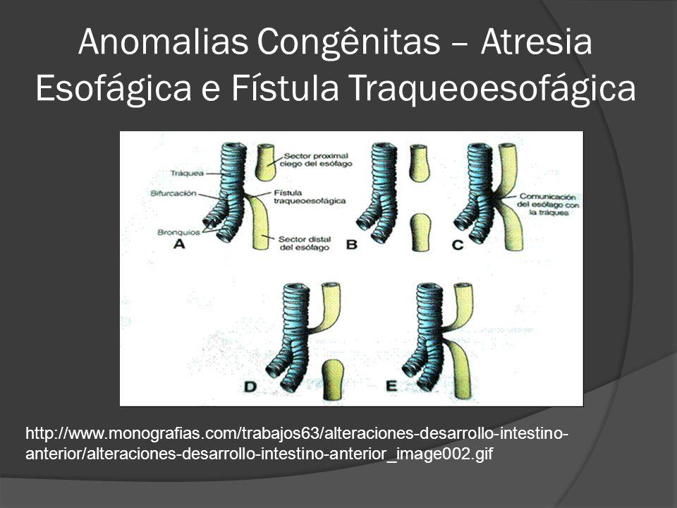Anomalias Congênitas – Atresia Esofágica e Fístula Traqueoesofágica http://www.monografias.com/trabajos63/alteraciones-desarrollo-intestino- anterior/