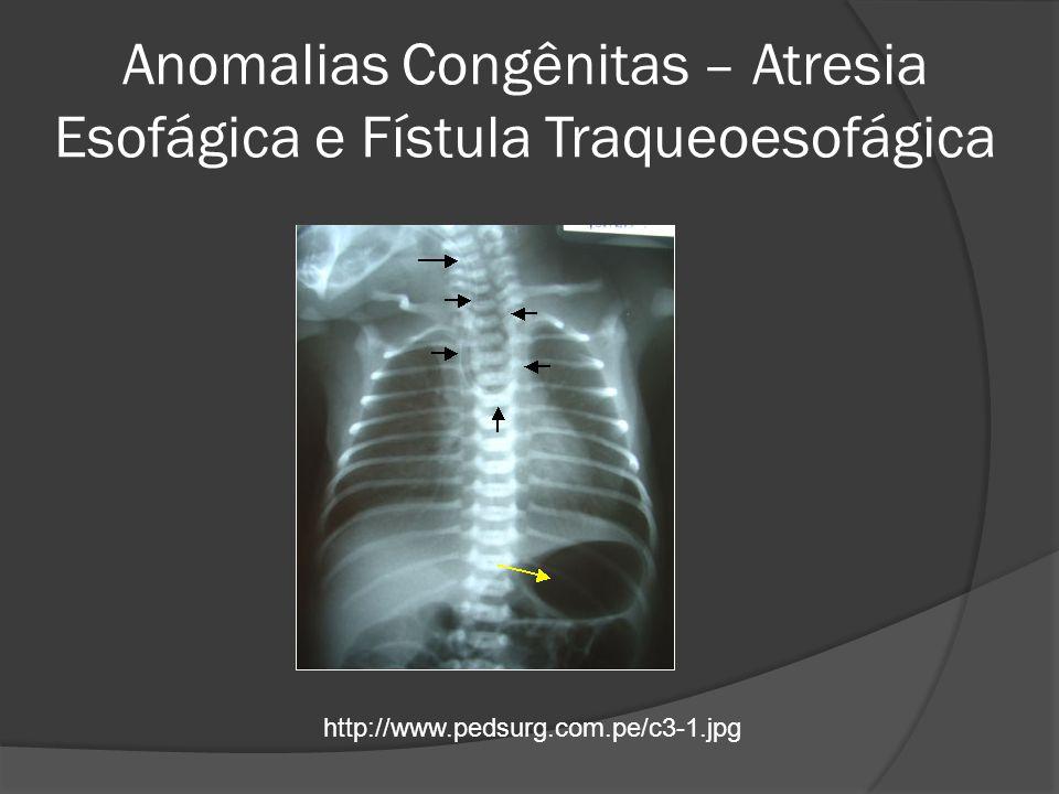 Acalasia – Megaesôfago Não tem cura, tratamento paliativo ATB para Chagas se sorologia positiva Tratamento endoscópico ou cirúrgico Sabiston, Tratado de Cirurgia, A Base Biológica da Prática Cirúrgica Moderna.