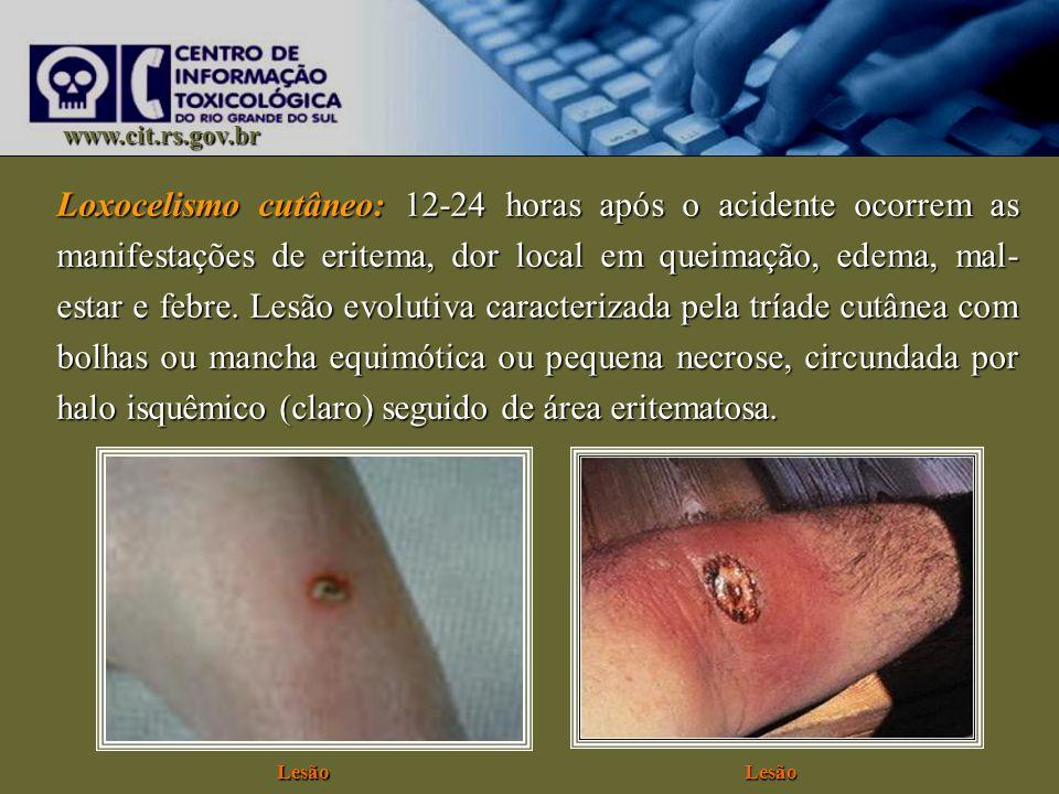 www.cit.rs.gov.br Loxocelismo cutâneo: 12-24 horas após o acidente ocorrem as manifestações de eritema, dor local em queimação, edema, mal- estar e fe