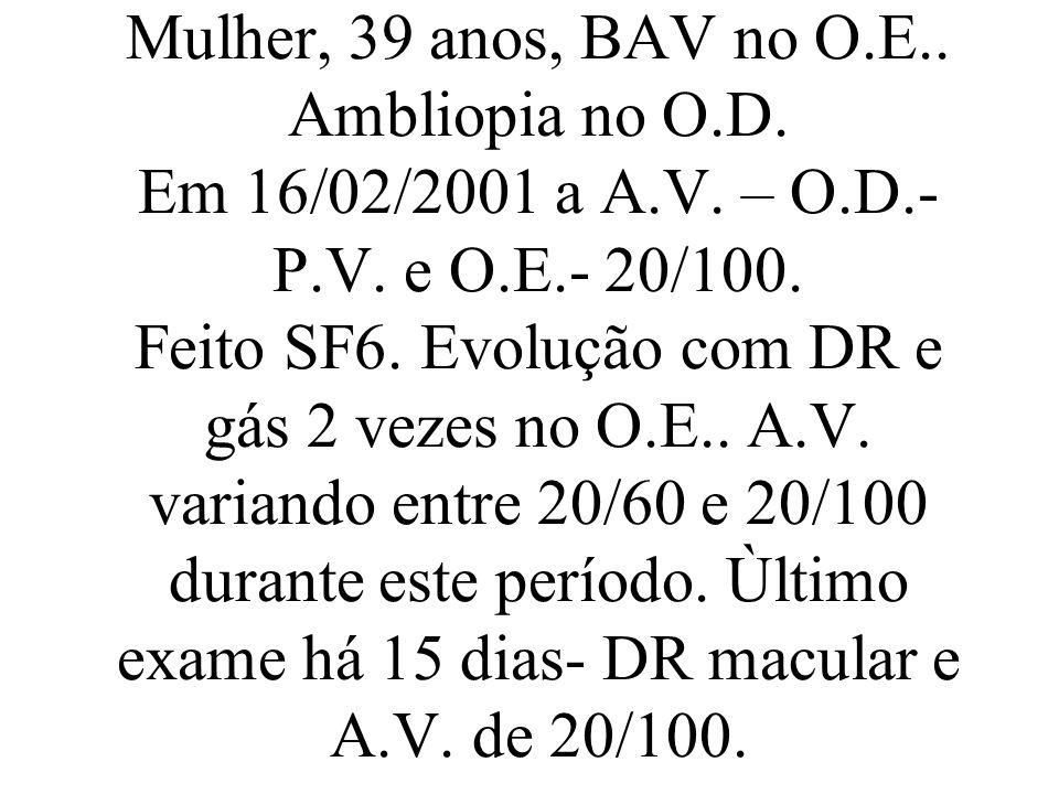 Mulher, 39 anos, BAV no O.E.. Ambliopia no O.D. Em 16/02/2001 a A.V. – O.D.- P.V. e O.E.- 20/100. Feito SF6. Evolução com DR e gás 2 vezes no O.E.. A.