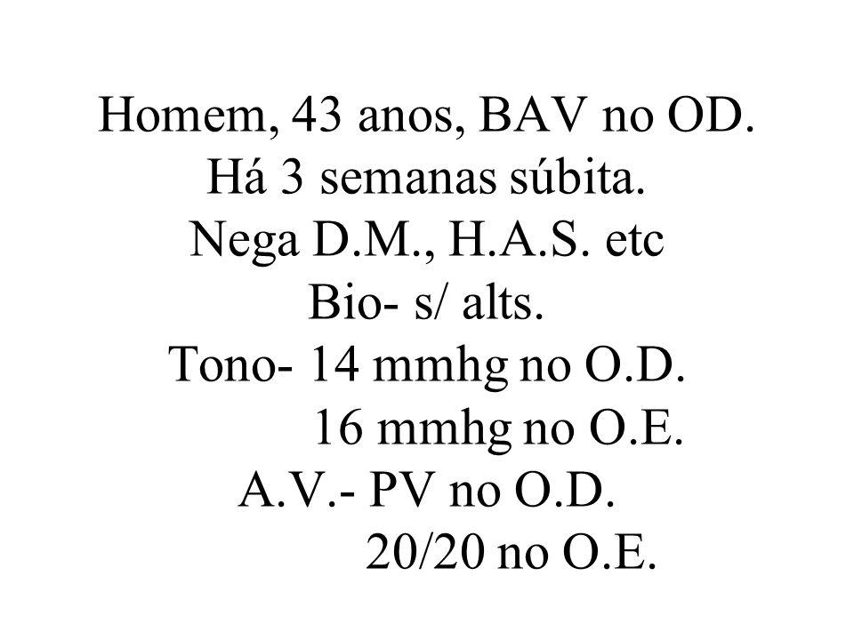 Homem, 43 anos, BAV no OD. Há 3 semanas súbita. Nega D.M., H.A.S. etc Bio- s/ alts. Tono- 14 mmhg no O.D. 16 mmhg no O.E. A.V.- PV no O.D. 20/20 no O.