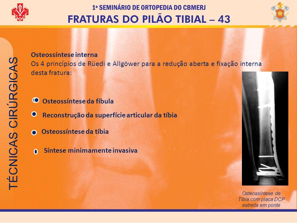 TÉCNICAS CIRÚRGICAS Osteossíntese interna Os 4 princípios de Rüedi e Allgöwer para a redução aberta e fixação interna desta fratura: Osteossíntese da