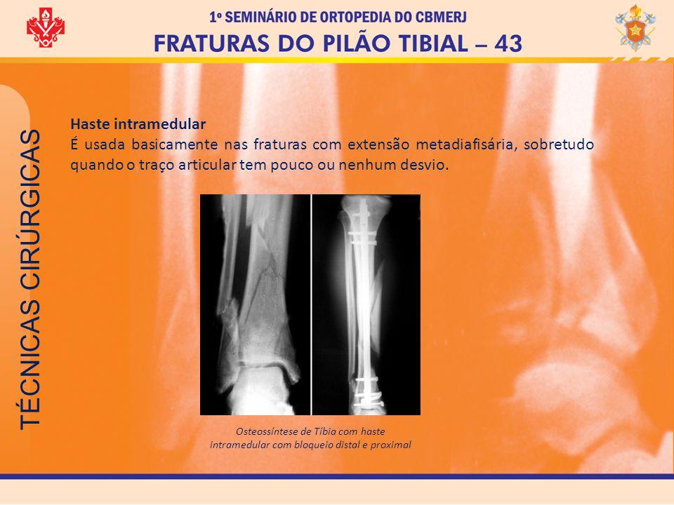 TÉCNICAS CIRÚRGICAS Osteossíntese de Tíbia com haste intramedular com bloqueio distal e proximal Haste intramedular É usada basicamente nas fraturas c