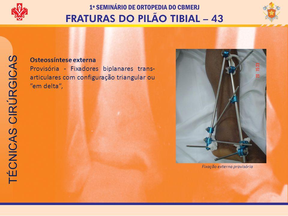 TÉCNICAS CIRÚRGICAS Osteossíntese externa Provisória - Fixadores biplanares trans- articulares com configuração triangular ou em delta, Fixação extern