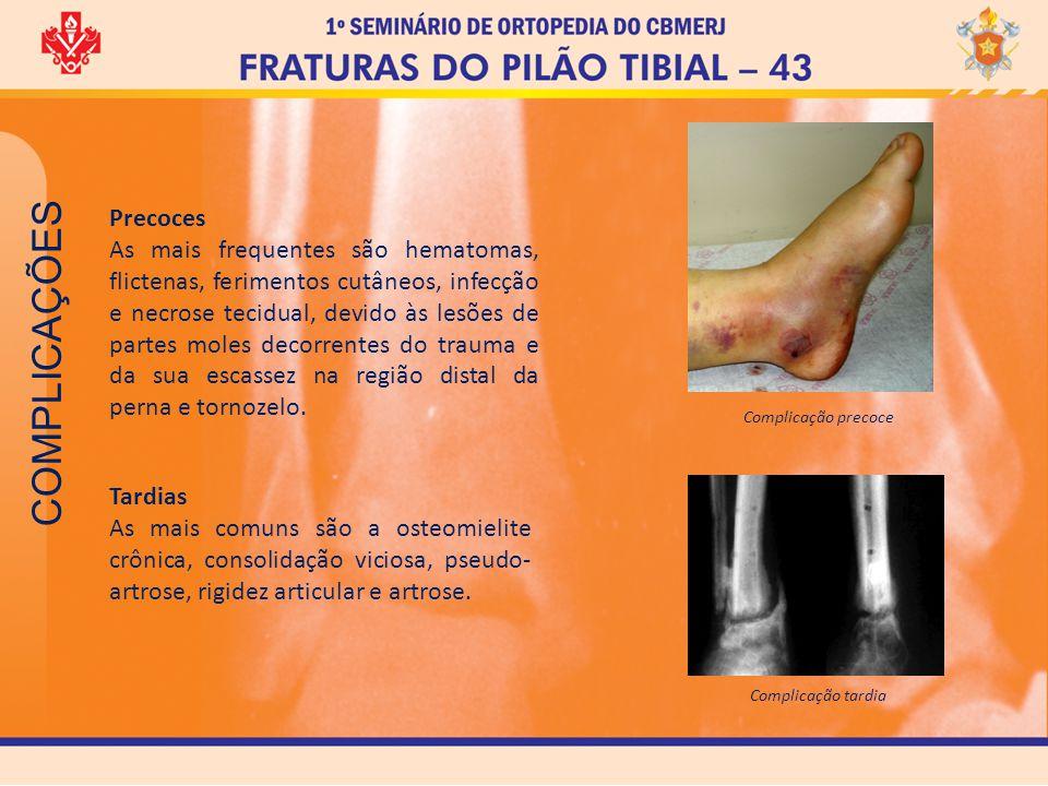 COMPLICAÇÕES Precoces As mais frequentes são hematomas, flictenas, ferimentos cutâneos, infecção e necrose tecidual, devido às lesões de partes moles