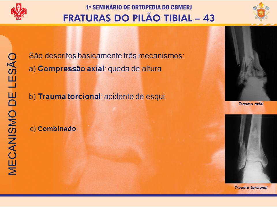 MECANISMO DE LESÃO São descritos basicamente três mecanismos: a) Compressão axial: queda de altura b) Trauma torcional: acidente de esqui. Trauma axia