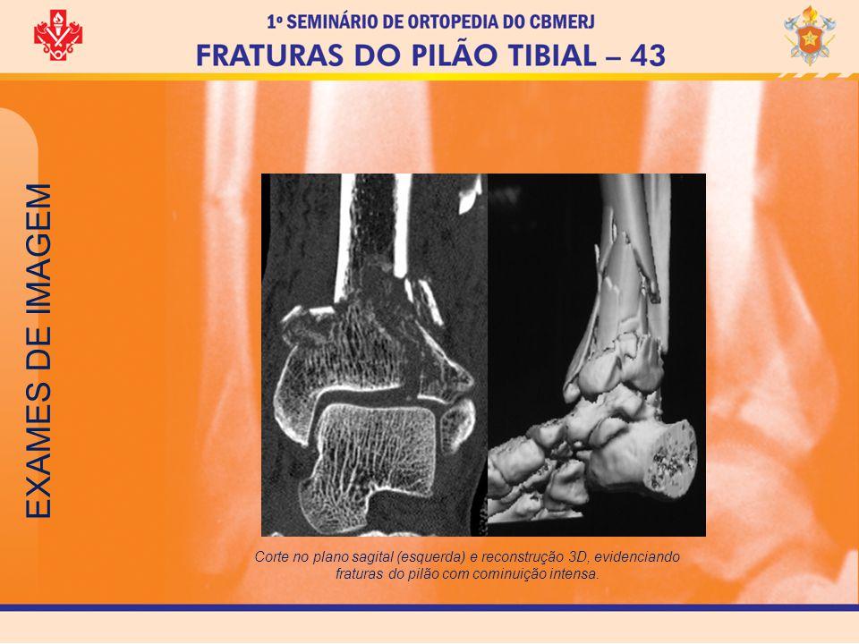 TRATAMENTO Tratamento não cirúrgico Está indicado basicamente nos casos de fraturas sem desvio e naqueles pacientes sem condições cirúrgicas.