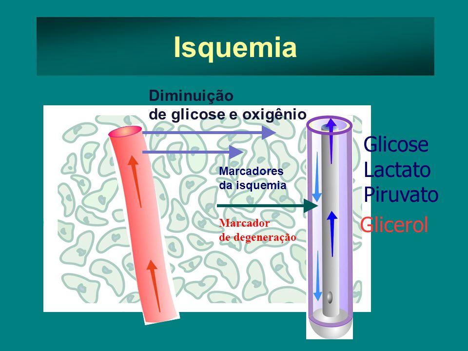 Isquemia Diminuição de glicose e oxigênio Marcadores da isquemia Marcador de degeneração Glicose Lactato Piruvato Glicerol