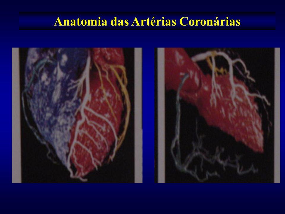 Distribuição das artérias coronárias revascularizadas e o correspondente enxerto Artéria Revascularizada EnxertosNúmero de Pacientes Porcentagens ARTÉRIA INTERVENTRICULAR ANTERIOR ATIE ATID A.
