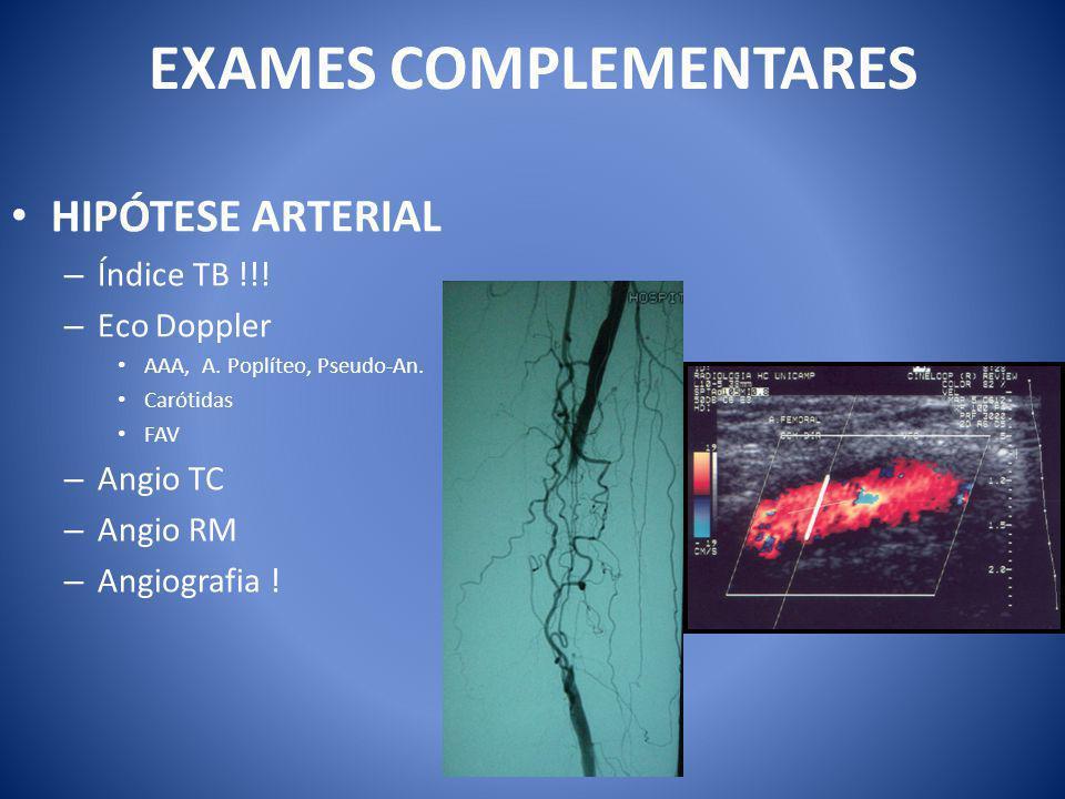 EXAMES COMPLEMENTARES HIPÓTESE ARTERIAL – Índice TB !!.