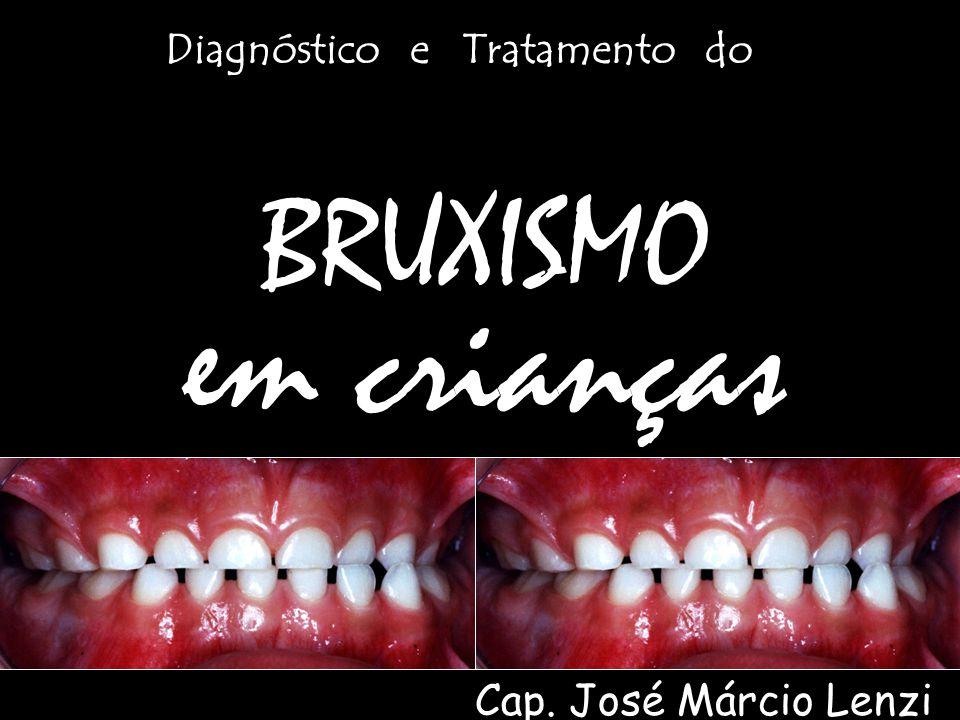 BRUXISMO em crianças Diagnóstico e Tratamento do Cap. José Márcio Lenzi