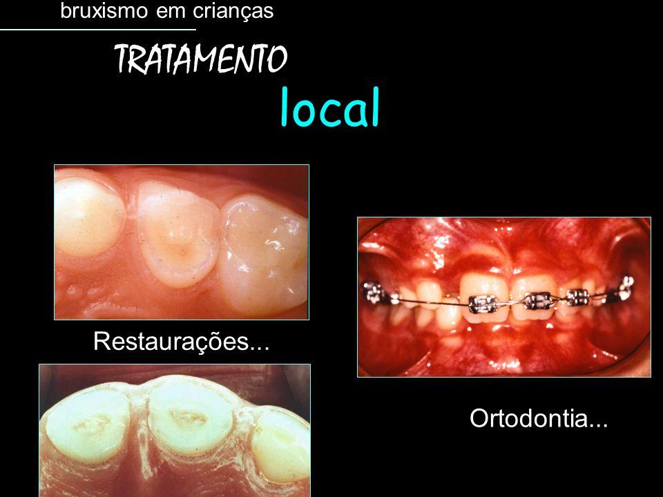 Restaurações... Ortodontia... bruxismo em crianças TRATAMENTO local
