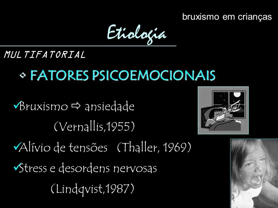 FATORES PSICOEMOCIONAIS FATORES PSICOEMOCIONAIS Etiologia bruxismo em crianças MULTIFATORIAL Bruxismo ansiedade (Vernallis,1955) Alívio de tensões (Thaller, 1969) Stress e desordens nervosas (Lindqvist,1987)