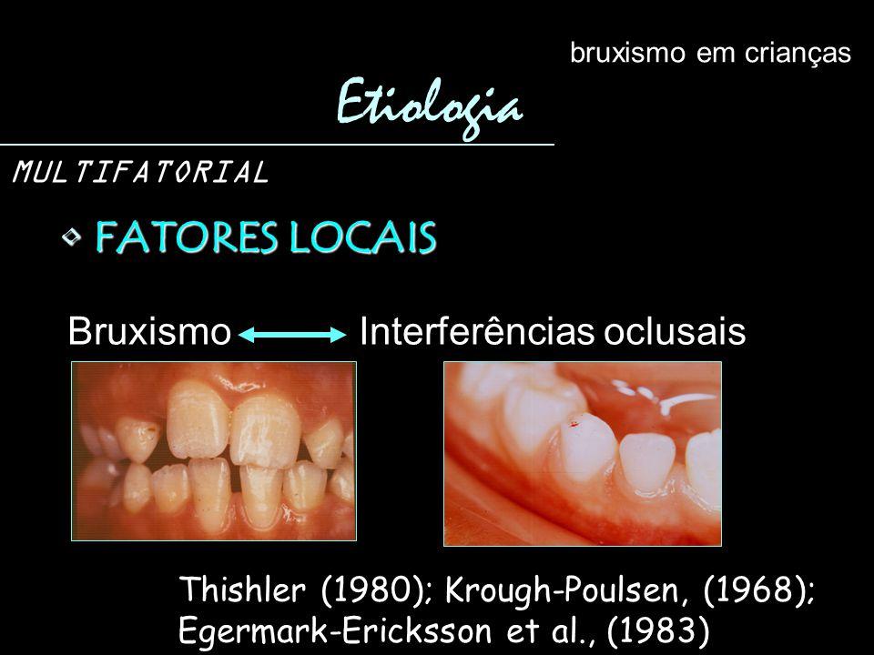 FATORES LOCAIS FATORES LOCAIS Etiologia bruxismo em crianças MULTIFATORIAL Bruxismo Interferências oclusais Thishler (1980); Krough-Poulsen, (1968); E