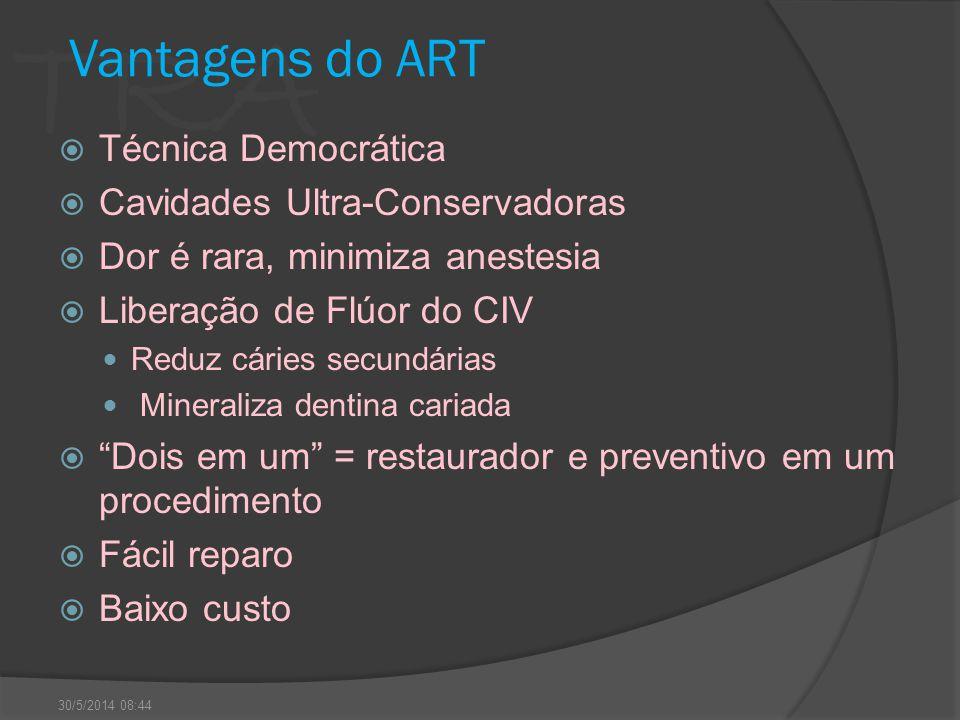 TRA Vantagens do ART Técnica Democrática Cavidades Ultra-Conservadoras Dor é rara, minimiza anestesia Liberação de Flúor do CIV Reduz cáries secundári