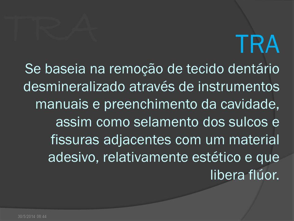TRA Se baseia na remoção de tecido dentário desmineralizado através de instrumentos manuais e preenchimento da cavidade, assim como selamento dos sulc