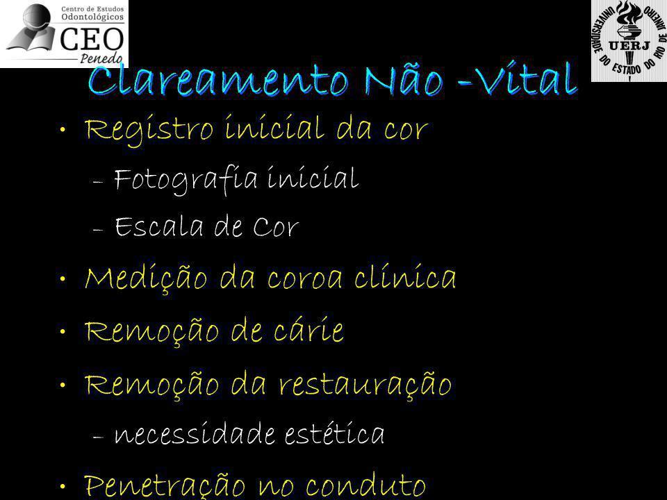Registro inicial da cor – Fotografia inicial – Escala de Cor Medição da coroa clínica Remoção de cárie Remoção da restauração – necessidade estética P