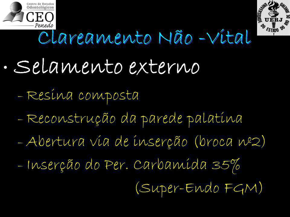 Selamento externo – Resina composta – Reconstrução da parede palatina – Abertura via de inserção (broca nº2) – Inserção do Per. Carbamida 35% (Super-E