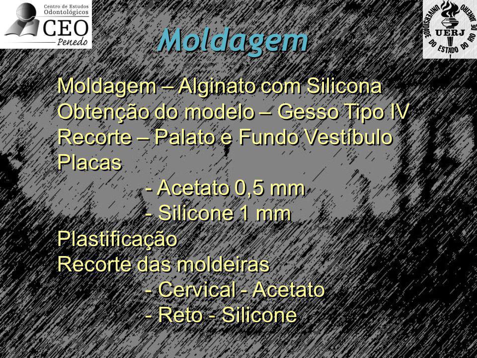 Moldagem Moldagem – Alginato com Silicona Obtenção do modelo – Gesso Tipo IV Recorte – Palato e Fundo Vestíbulo Placas - Acetato 0,5 mm - Silicone 1 m