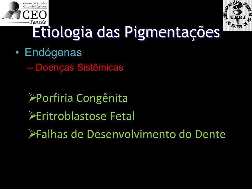 Etiologia das Pigmentações Endógenas –Doenças Sistêmicas Porfiria Congênita Eritroblastose Fetal Falhas de Desenvolvimento do Dente Endógenas –Doenças