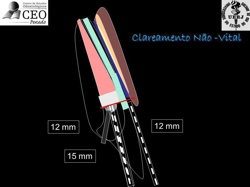 Clareamento Não -Vital 12 mm 15 mm 12 mm