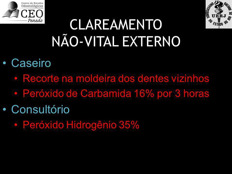 CLAREAMENTO NÃO-VITAL EXTERNO Caseiro Recorte na moldeira dos dentes vizinhos Peróxido de Carbamida 16% por 3 horas Consultório Peróxido Hidrogênio 35%