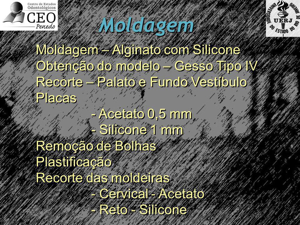 Moldagem Moldagem – Alginato com Silicone Obtenção do modelo – Gesso Tipo IV Recorte – Palato e Fundo Vestíbulo Placas - Acetato 0,5 mm - Silicone 1 mm Remoção de Bolhas Plastificação Recorte das moldeiras - Cervical - Acetato - Reto - Silicone Moldagem – Alginato com Silicone Obtenção do modelo – Gesso Tipo IV Recorte – Palato e Fundo Vestíbulo Placas - Acetato 0,5 mm - Silicone 1 mm Remoção de Bolhas Plastificação Recorte das moldeiras - Cervical - Acetato - Reto - Silicone