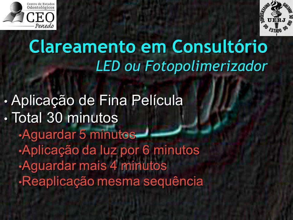 Clareamento em Consultório LED ou Fotopolimerizador Clareamento em Consultório LED ou Fotopolimerizador Aplicação de Fina Película Total 30 minutos Aguardar 5 minutos Aplicação da luz por 6 minutos Aguardar mais 4 minutos Reaplicação mesma sequência Aplicação de Fina Película Total 30 minutos Aguardar 5 minutos Aplicação da luz por 6 minutos Aguardar mais 4 minutos Reaplicação mesma sequência