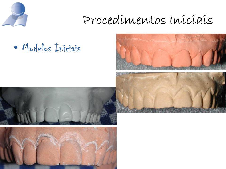 Procedimentos Iniciais Modelos Iniciais
