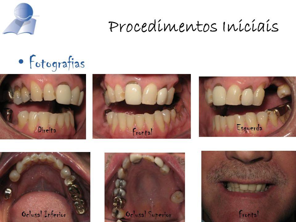 Procedimentos Iniciais Fotografias Frontal Esquerda Direita Oclusal InferiorOclusal SuperiorFrontal