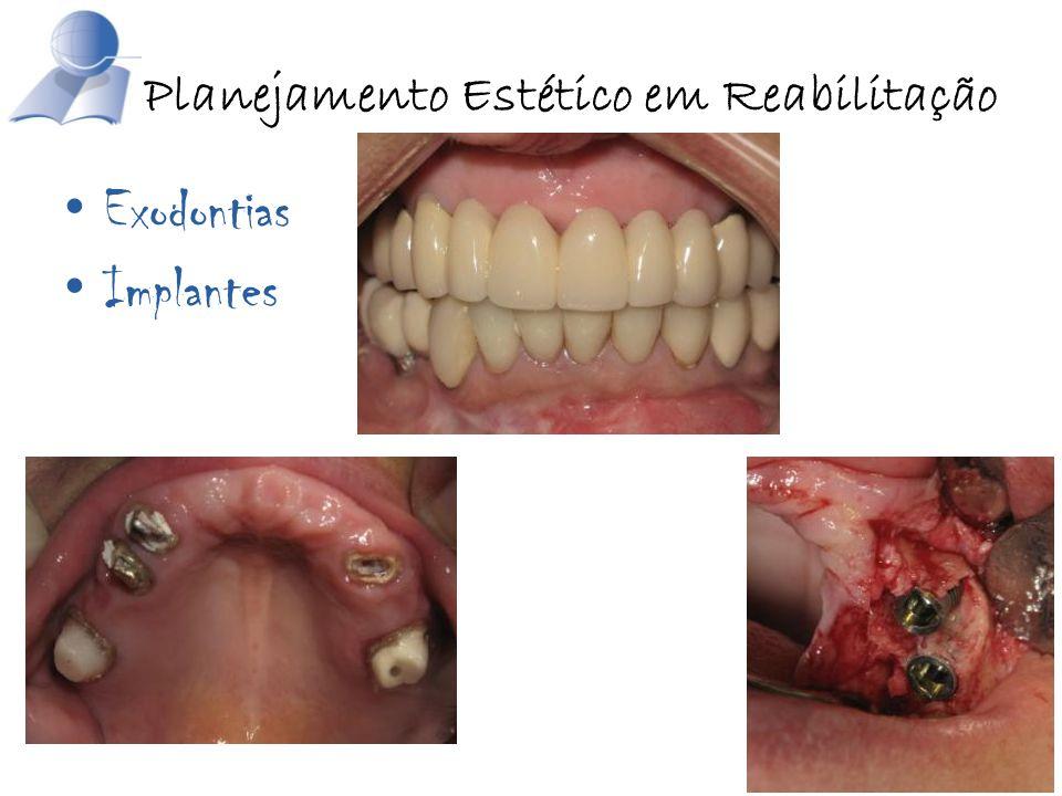Exodontias Implantes Planejamento Estético em Reabilitação