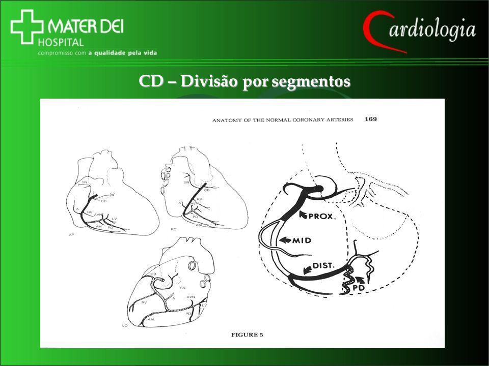 CD – Divisão por segmentos