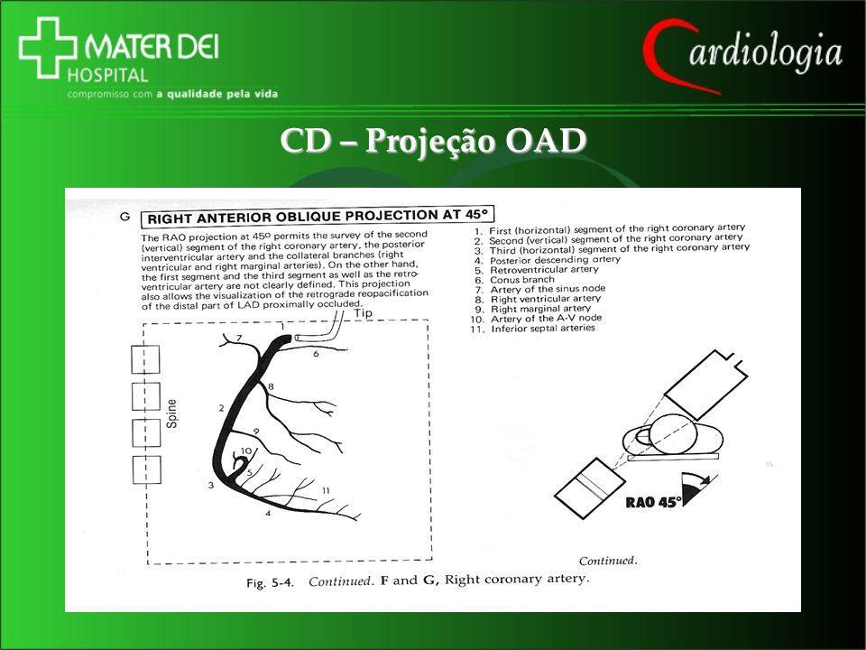 CD – Projeção OAD