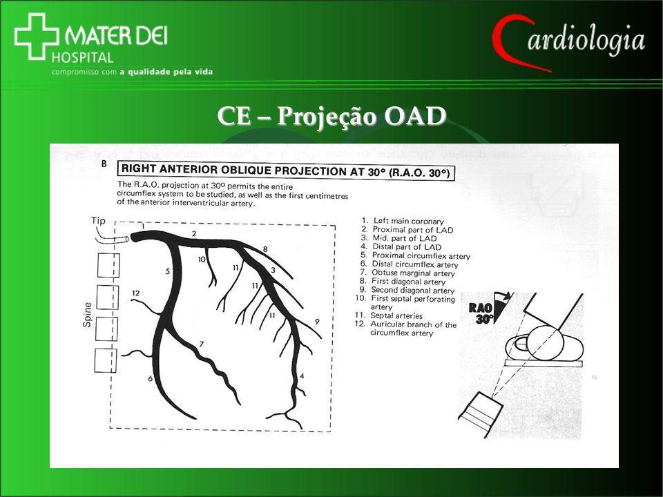 CE – Projeção OAD