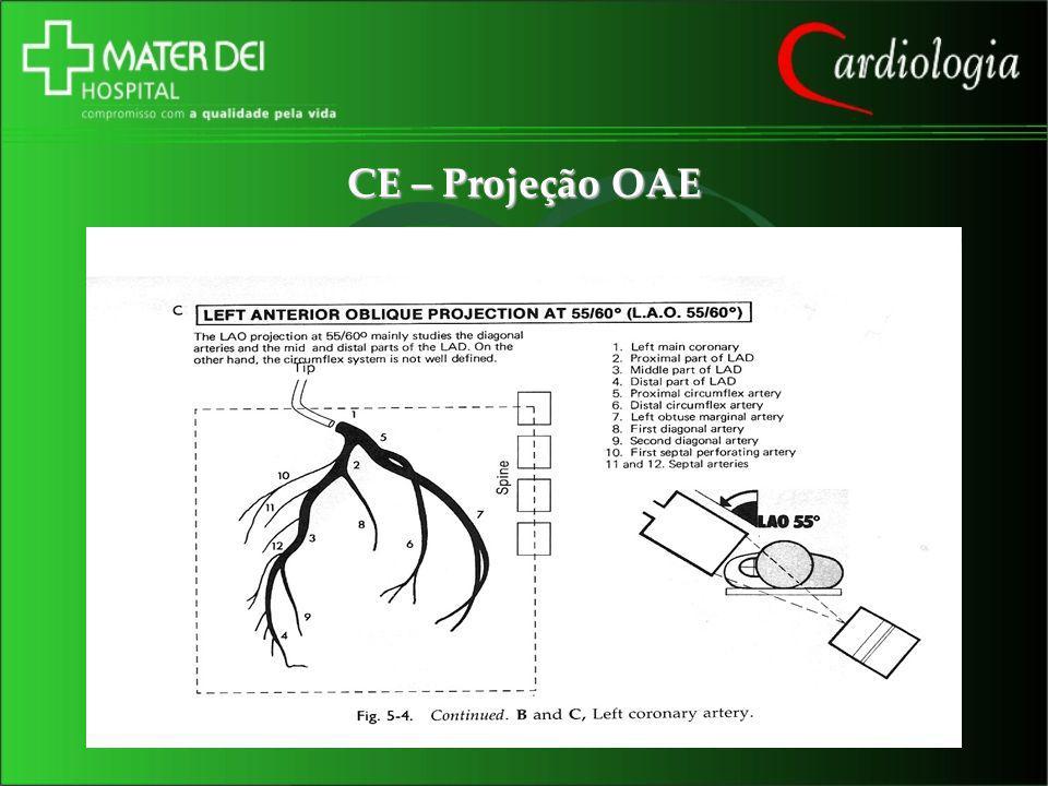 CE – Projeção OAE