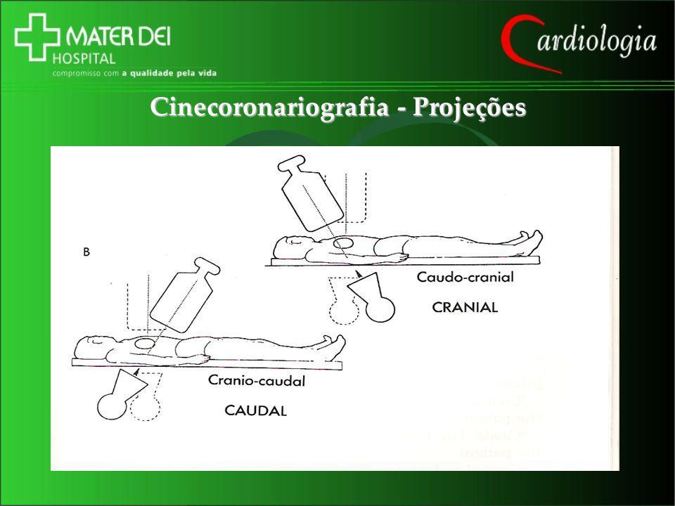 Cinecoronariografia - Projeções