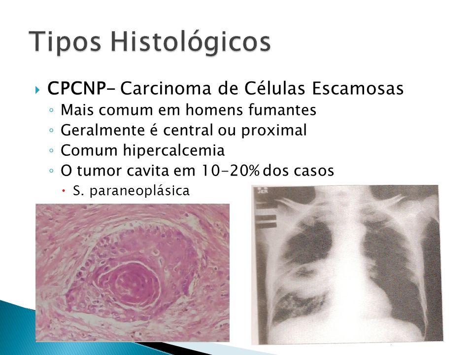 CPCNP- Carcinoma de Células Escamosas Mais comum em homens fumantes Geralmente é central ou proximal Comum hipercalcemia O tumor cavita em 10-20% dos