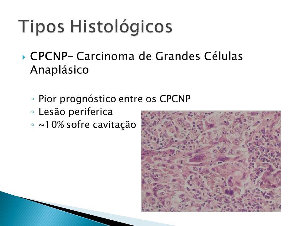 CPCNP- Carcinoma de Grandes Células Anaplásico Pior prognóstico entre os CPCNP Lesão periferica ~10% sofre cavitação