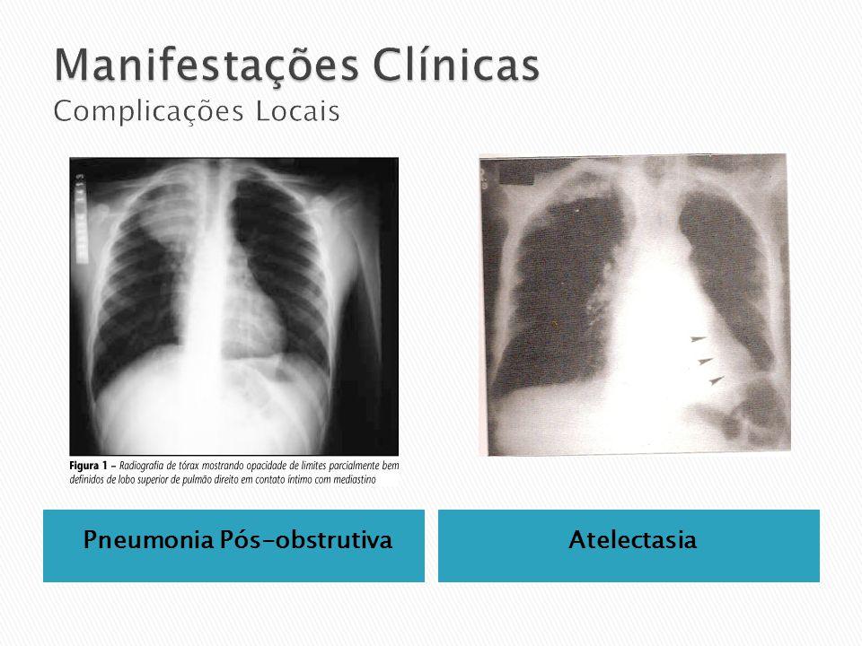 Pneumonia Pós-obstrutivaAtelectasia