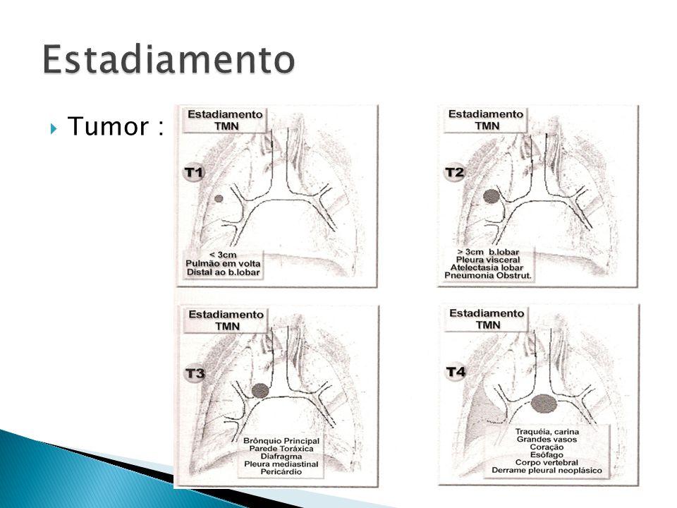 Tumor :
