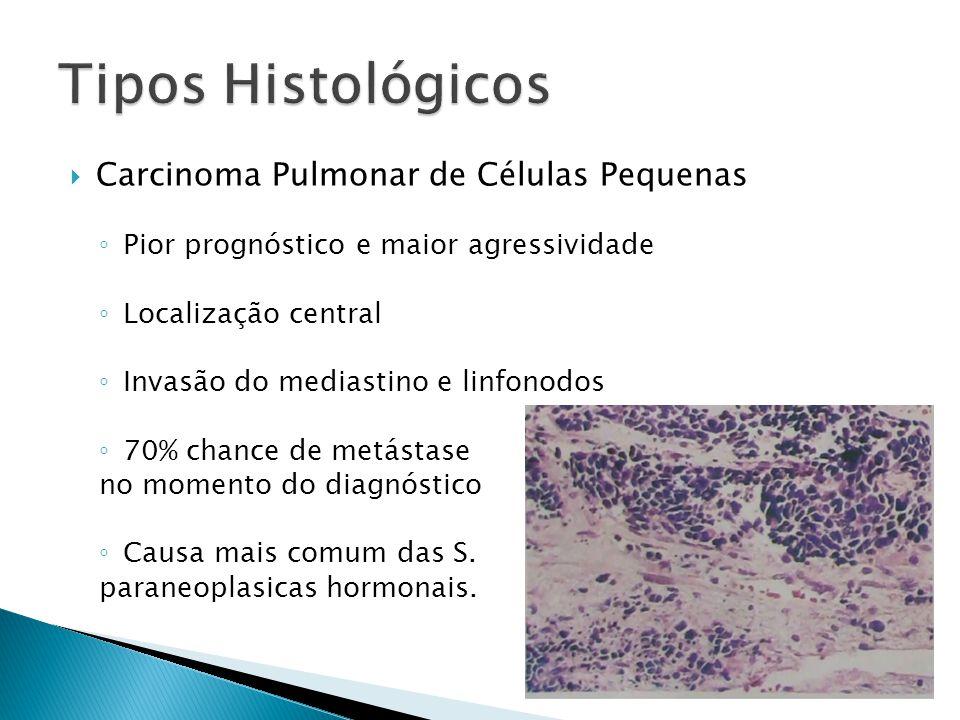 Carcinoma Pulmonar de Células Pequenas Pior prognóstico e maior agressividade Localização central Invasão do mediastino e linfonodos 70% chance de met