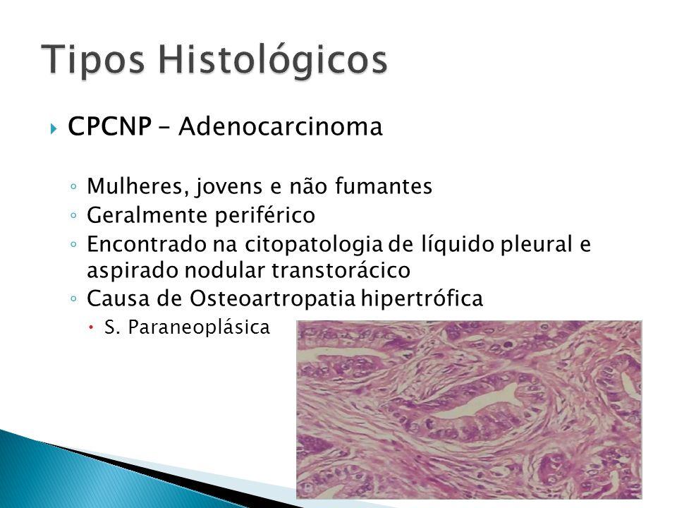 CPCNP – Adenocarcinoma Mulheres, jovens e não fumantes Geralmente periférico Encontrado na citopatologia de líquido pleural e aspirado nodular transto