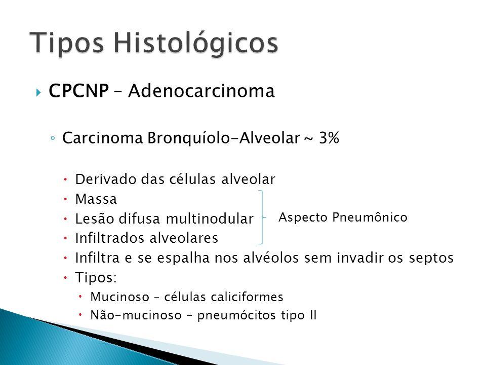 CPCNP – Adenocarcinoma Carcinoma Bronquíolo-Alveolar ~ 3% Derivado das células alveolar Massa Lesão difusa multinodular Infiltrados alveolares Infiltr