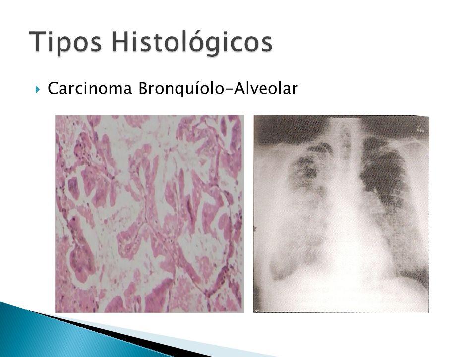 Carcinoma Bronquíolo-Alveolar