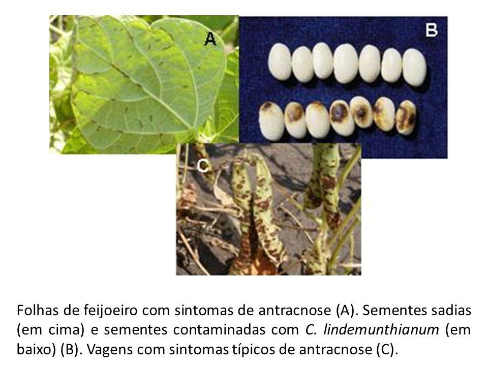 Folhas de feijoeiro com sintomas de antracnose (A). Sementes sadias (em cima) e sementes contaminadas com C. lindemunthianum (em baixo) (B). Vagens co