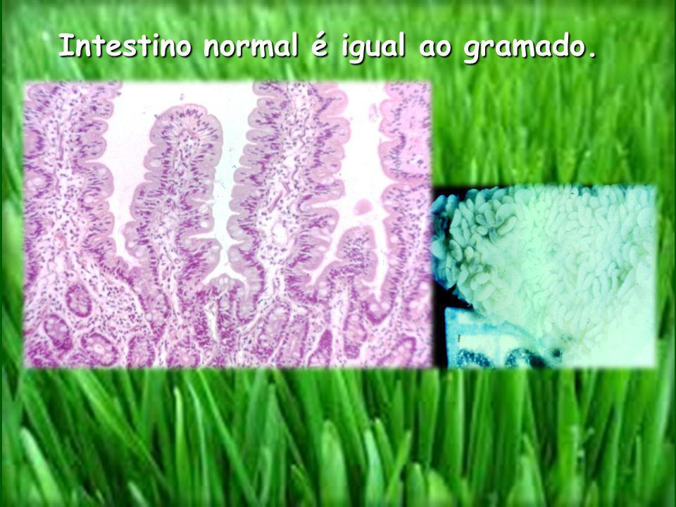 Intestino normal é igual ao gramado. Intestino normal é igual ao gramado.