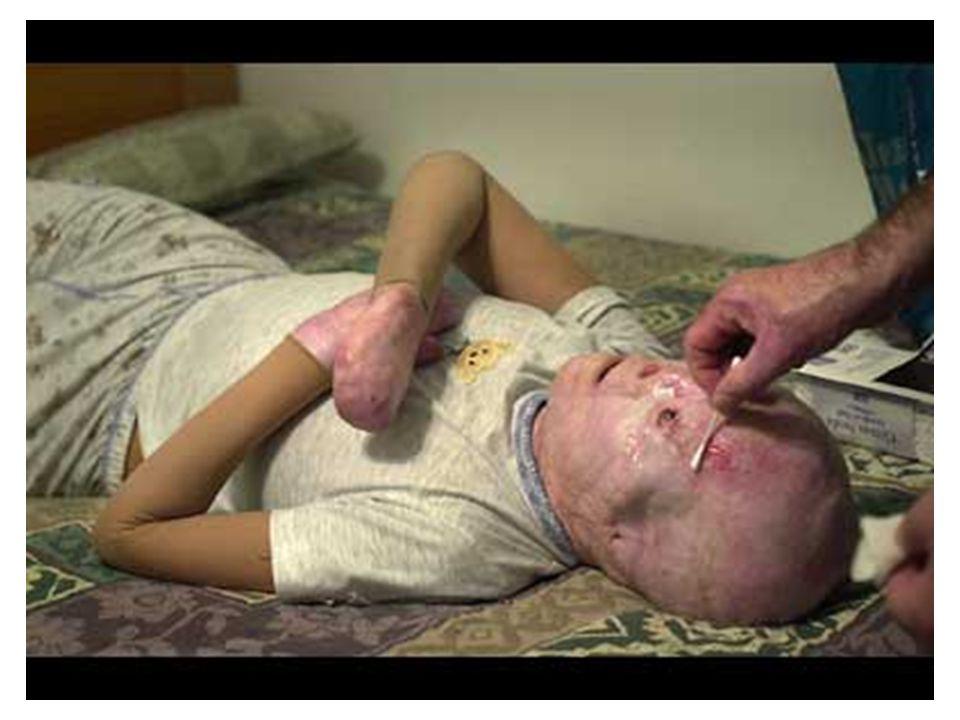 Depart. De Educação Sanitária do Sanatório e Hospital Hinsdale, EUA 1. TOME UM BOM DESJEJUM